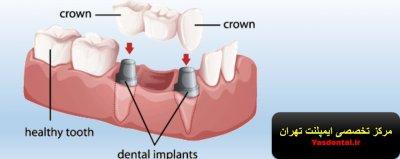 ایمپلنت دندان طلا